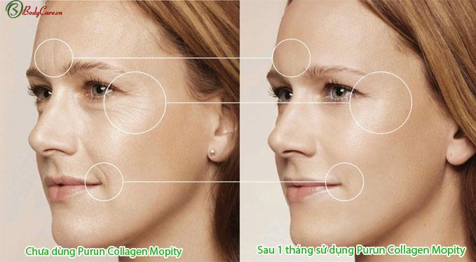 Hiệu quả trước và sau khi sử dụng Purun Mopity Collagen